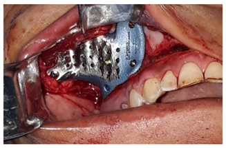 Individual replacement prosthesis: contemporaneous treatment